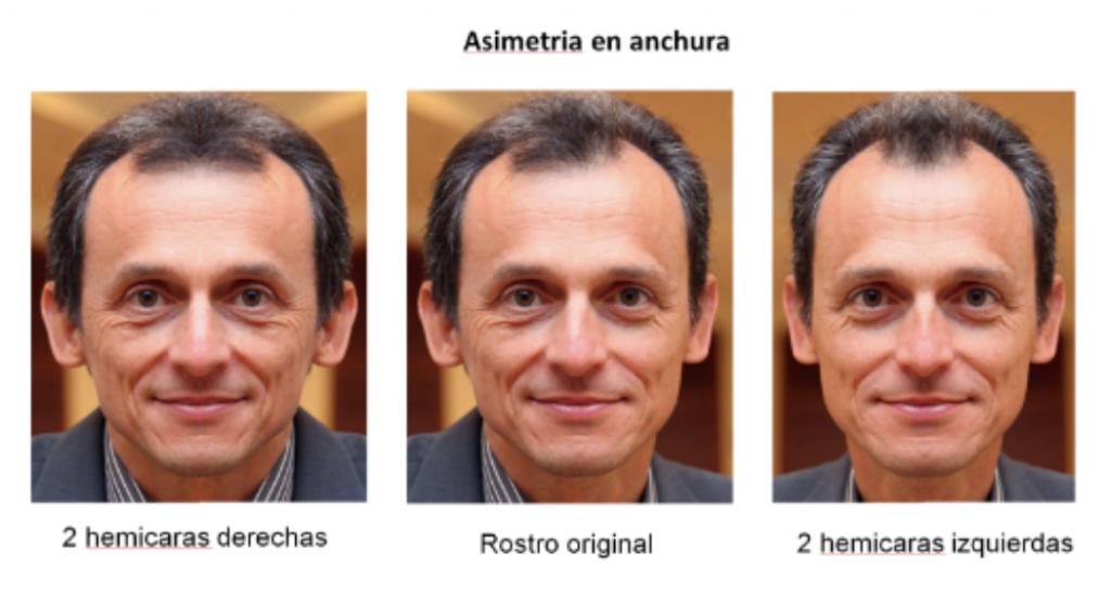 Asimetria